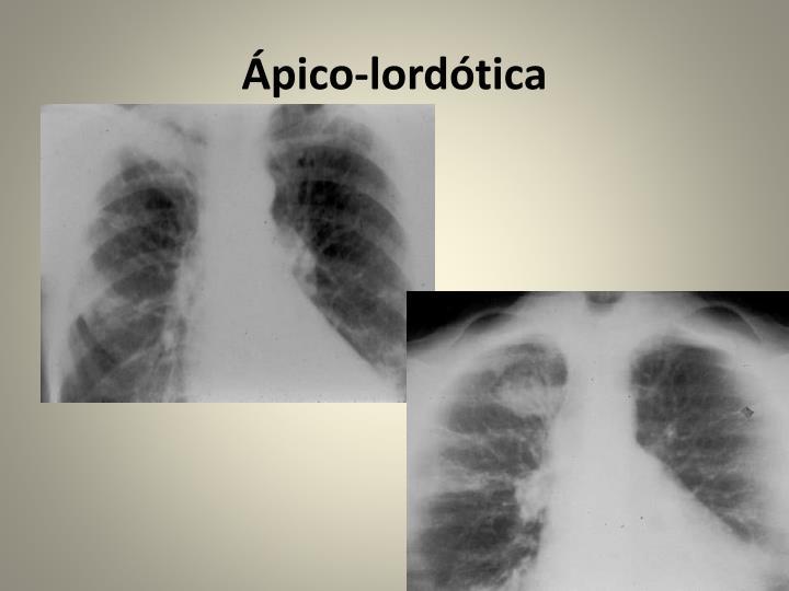 Ápico-lordótica