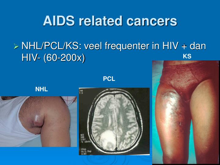 AIDS related cancers