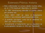 estenosis pil rica historia
