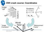 dwi crash course coordinates