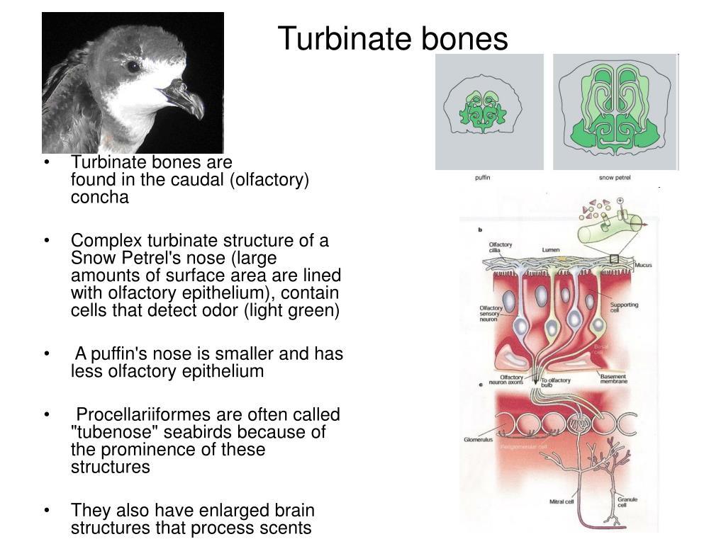 Turbinate bones are