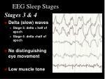 eeg sleep stages3