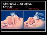 obstructive sleep apnea overview