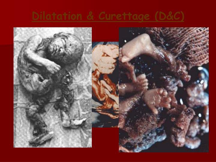 Dilatation & Curettage (D&C)