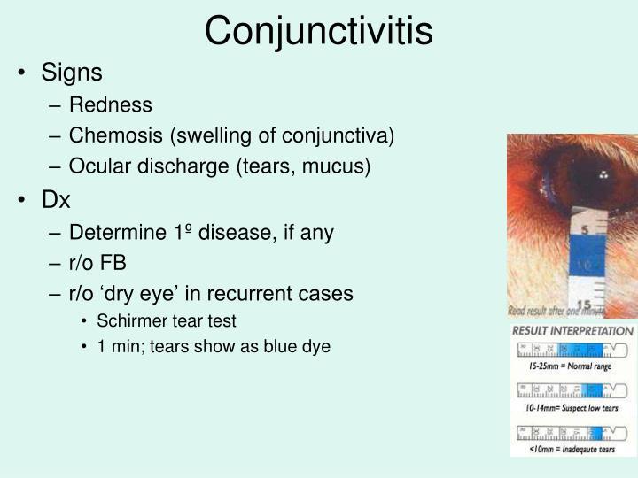 Conjunctivitis1