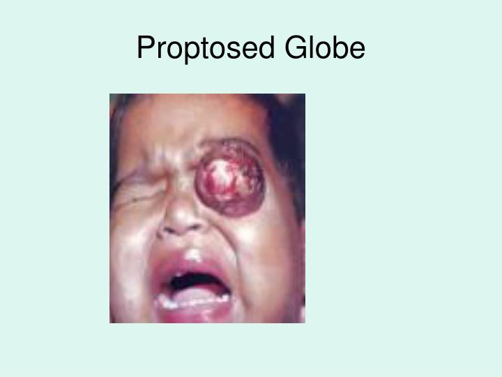 Proptosed Globe